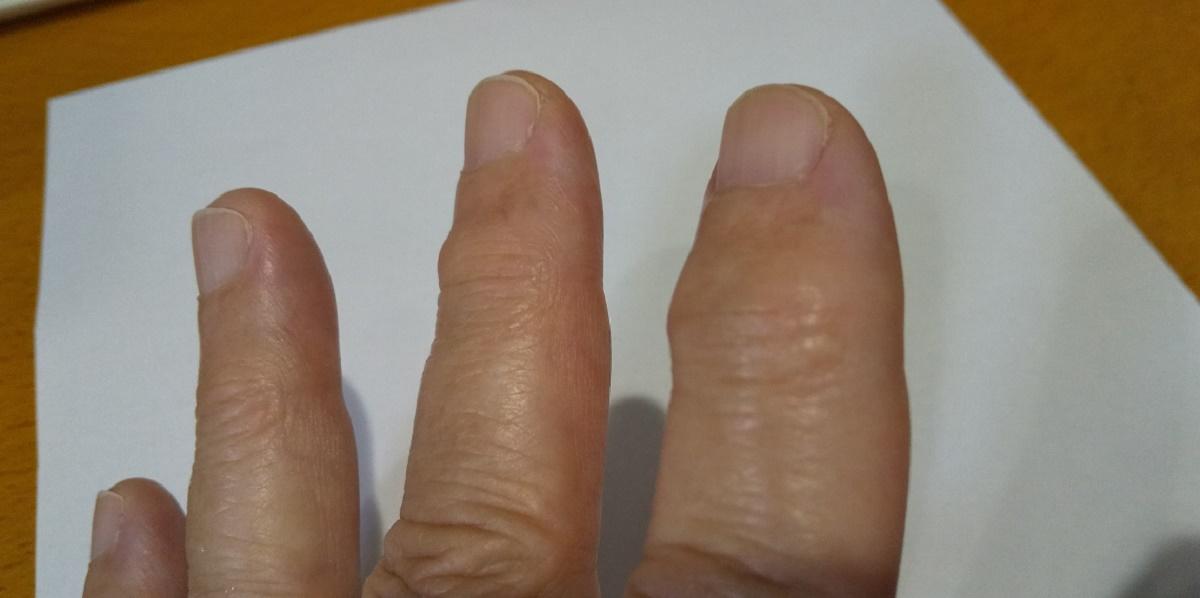 指の関節が変形、へバーデン結節と長く付き合うことになった