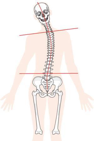 背骨歪み図